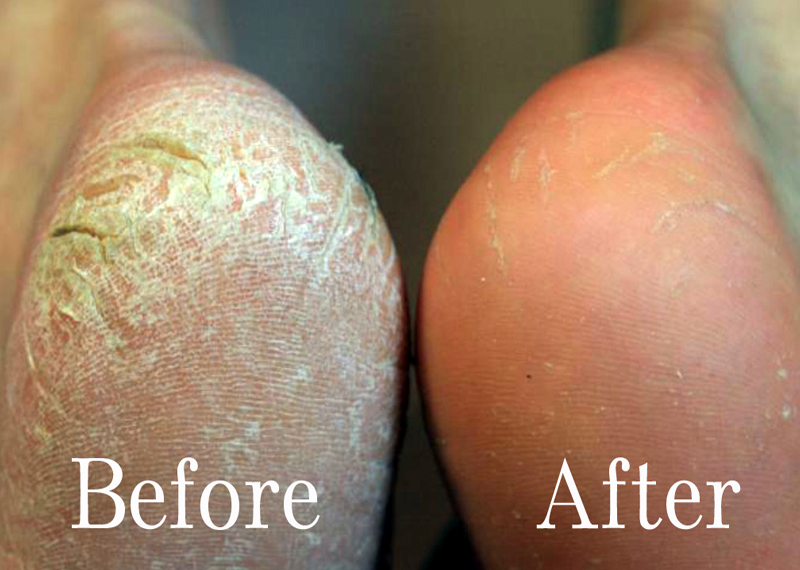 get rid of hard skin on heels