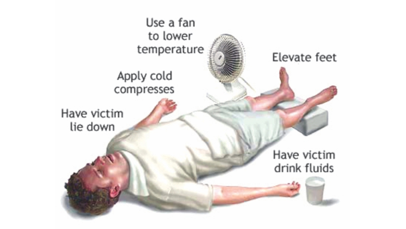 Sunstroke: Tips to Prevent and Combat