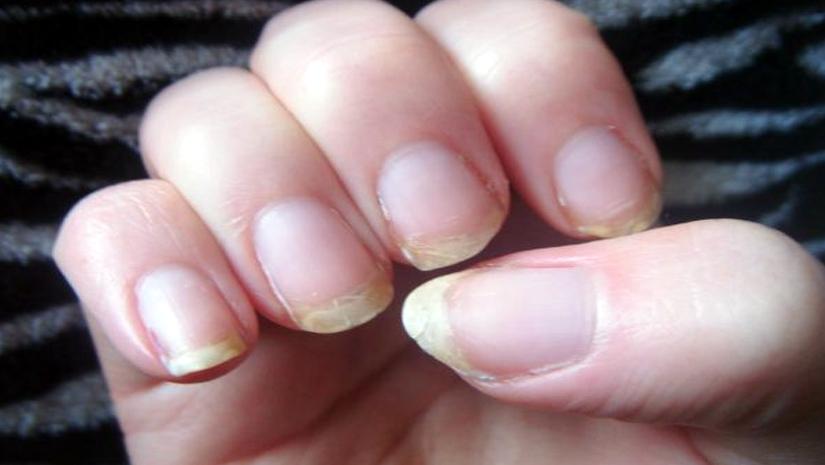 Brittle nails home remedies funbuzztime - Easy home remedy strengthen dry brittle nails ...