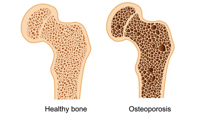 osteoporosis causes amp symptoms funbuzztime