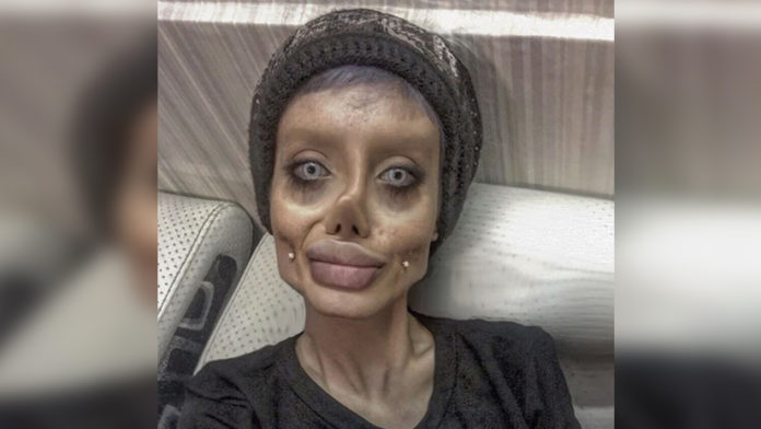 Woman Undergoes Over 50 Surgeries To Look Like Angelina Jolie And Here's How She Looks Like!